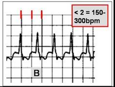 NCLEX Review: EKG's made EZ. Great for ACLS!