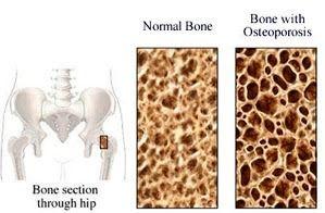 Η οστεοπόρωση είναι μια ασθένεια που χαρακτηρίζεται από χαμηλή οστική πυκνότητα και μέτρια ποιότητα οστού. Εξελίσσεται χωρίς συμπτώματα...
