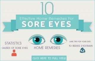 Sore Eyes Home Remedies