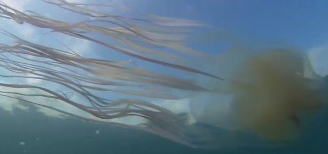 La méduse-boîte provoque régulièrement des décès.