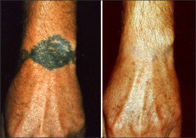 10 best images about tattoo removal before and after on for Tattoo removal maryland