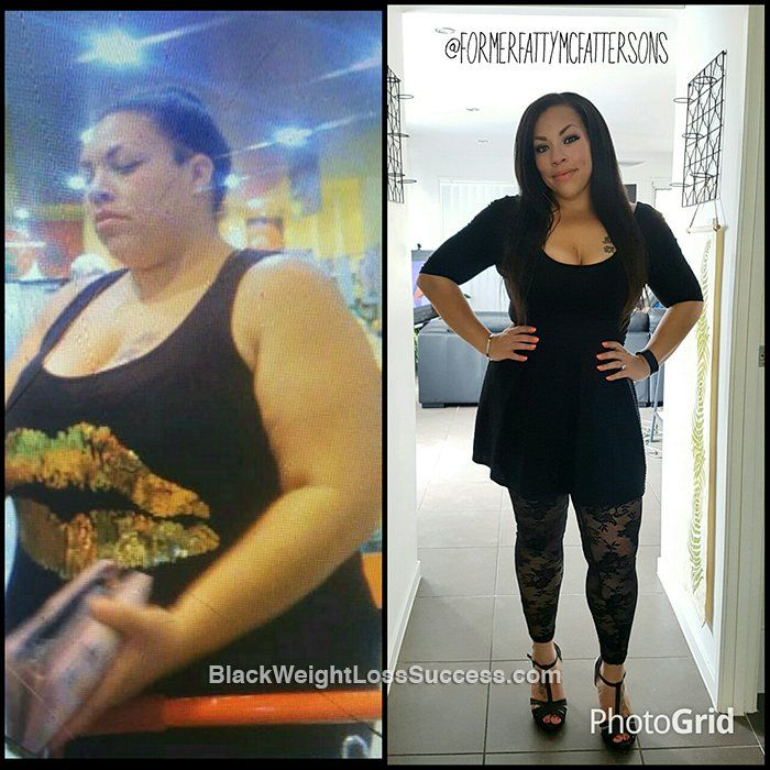 Skye lost 81 pounds. Her transformation was about being there for her family for years to come and breaking free of feelings of depression and hopelessness. This proud mom of 5 partnered with her son on this journey and they've lost over 130 lbs combined.