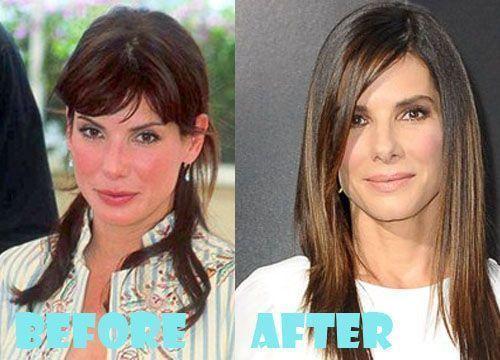 Sandra Bullock Plastische Chirurgie vor … #Schönheit Sandra Bullock Plastis
