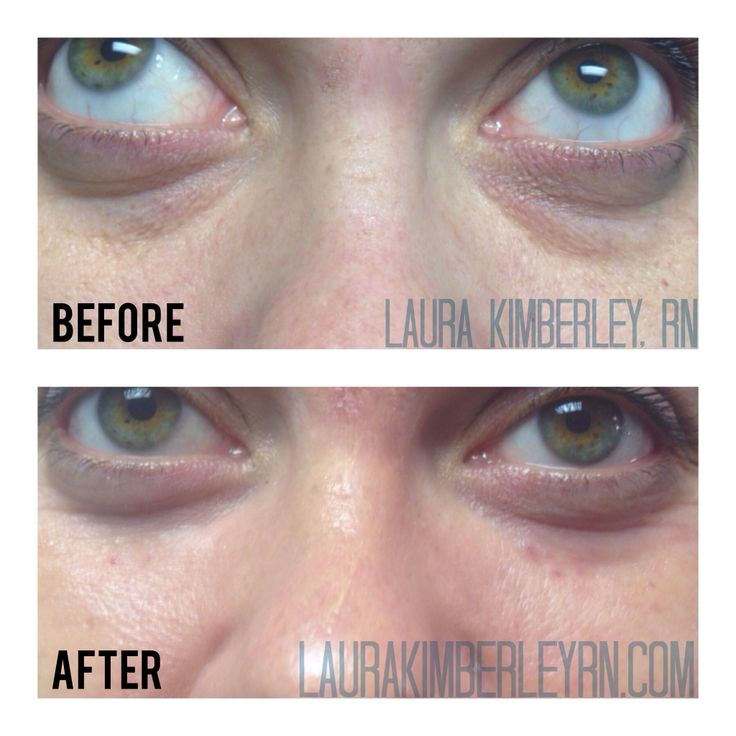 Filler can improve the appearance of under eye circles and bags.  No concealer necessary! #filler #botox #laurakimberley #boston