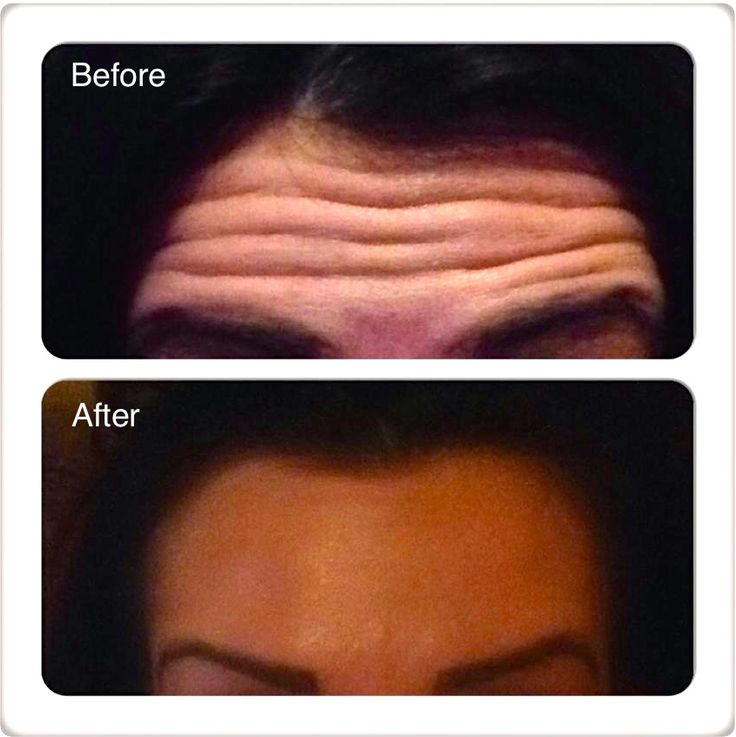 how to get rid of forehead wrinkles botox