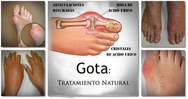 La gota es una forma compleja de artritis que está lleno de misterios. Estetipo de artritis ocurre cuando el ácido úrico se acumula en la sangre y causa inflamación articular.\r\n[ad]\r\nLa gota es generalmente pasada por alto por las personas que no han tenido experiencia con gota. Sin embargo, es una enfermedad puede ser insoportable para los que la padecen.\r\n[ad2]\r\nLa gota es causada por la acumulación de ácido úrico en la sangre a consecuencia de una degradación de los desechos…