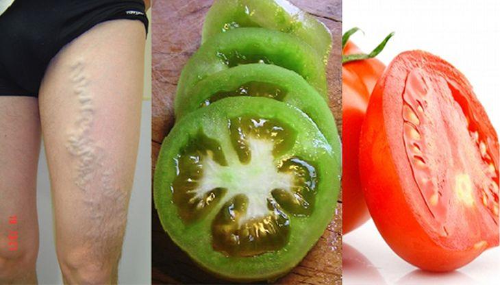 Hay dos maneras de curar las venas varicosas utilizando tomates verdes y rojos maduros.