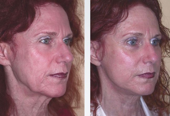 Homemade DIY Non-Surgical Facelift Doctrine To Appear Years Younger Applying Acupressure Manipulation