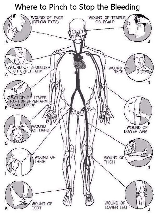 Where to Pinch to Stop the Bleeding.