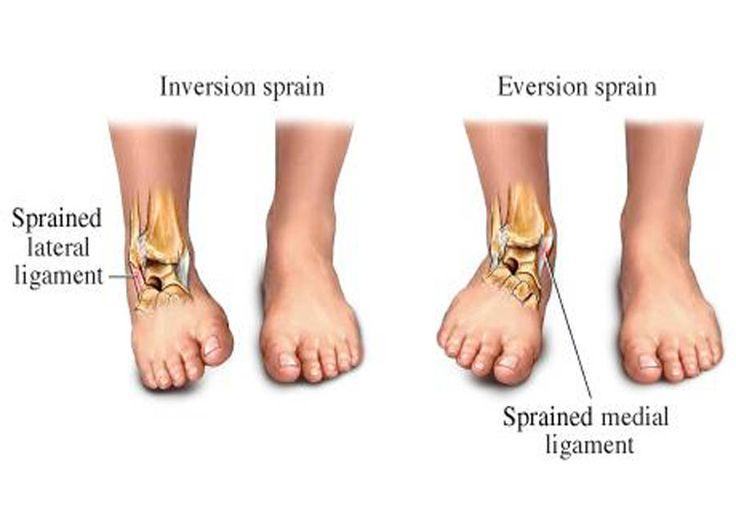 Edema ankle cpap machines