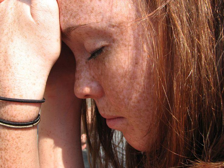 Qué alimentos evitar para aliviar el dolor de cabeza