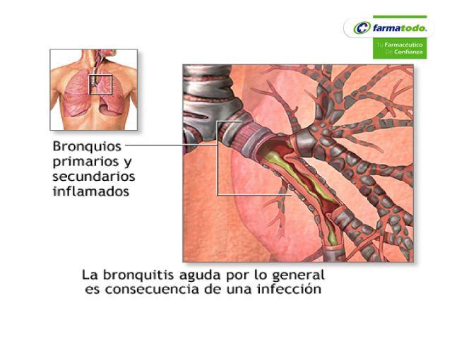 FARMACIA ¿Cuáles son las causas que provocan la  bronquitis? La bronquitis aguda generalmente se presenta después de un resfriado o gripe. Esta infección es causada por un virus y al principio solo llega a afectar a la nariz, a los senos paranasales y a la garganta para después propagarse hacia las vías respiratorias que van a los pulmones. En ocasiones, estas bacterias llegan a infectar las vías respiratorias y es a lo que se le conoce como infección secundaria. #farmacia
