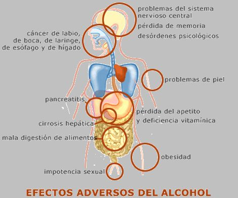 alcoholismo y sus consecuencias -