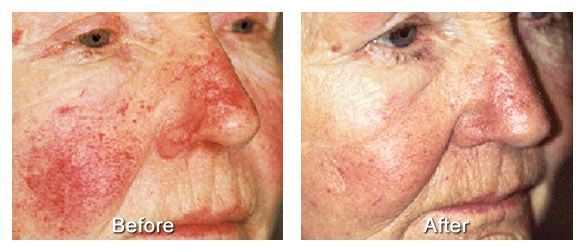 Photoderm rosacea treatment is a form of intense pulsed light (IPL) therapy that came about through advances in technology and the…