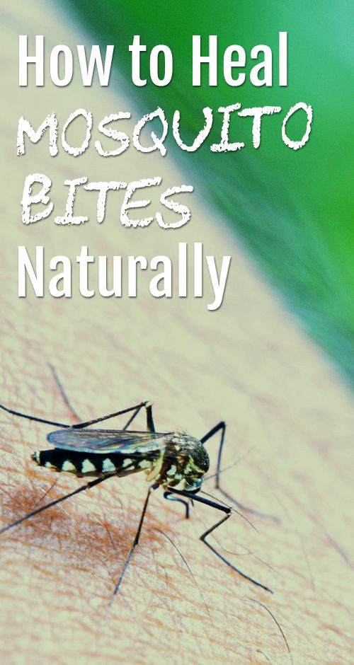 Top 5 Natural Ways to say Goodbye to Mosquito Bite #Natural_Remedies #NaturalHealth #HealthCare #HealthyFacts #Health #HerbalRemedies #NaturalMedicine www.naturalhq.org/
