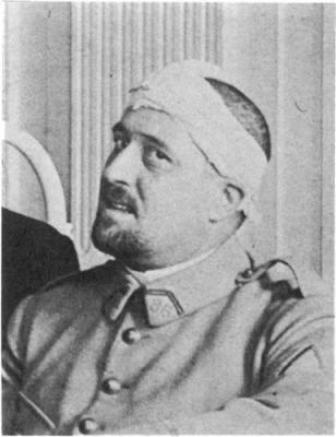 Guillaume Appolinaire, de Charybde en Scylla : trépanation avant grippe espagnole