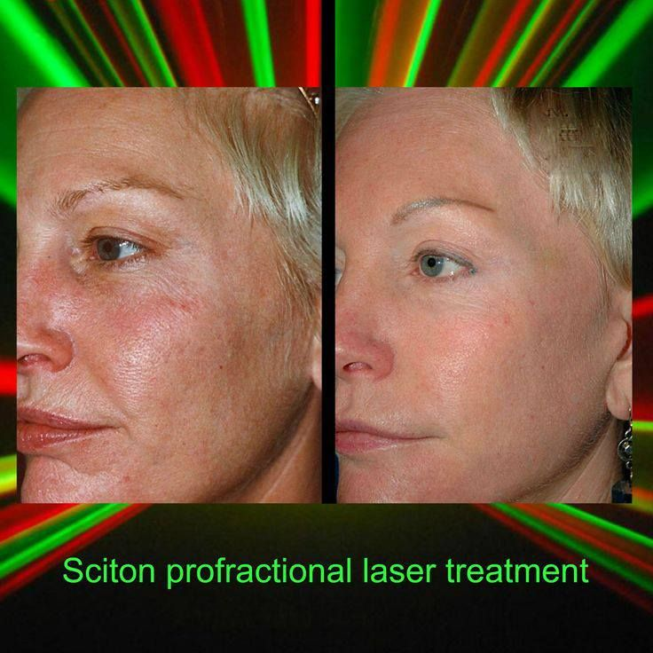 Sciton ProFractional Therapy / Fractional Skin Resurfacing ...