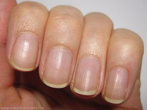 [Nagelpflege] Nagelhaut entfernen und pflegen