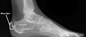 Dr Ajays Homeopathy : HOMEOPATHY FOR CALCANEAL SPUR (HEEL PAIN)