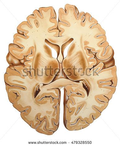 Brain Cross Section - Shown is the cerebral cortex, which is the deeply convoluted surface region of the brain that is most strongly linked to intelligence.