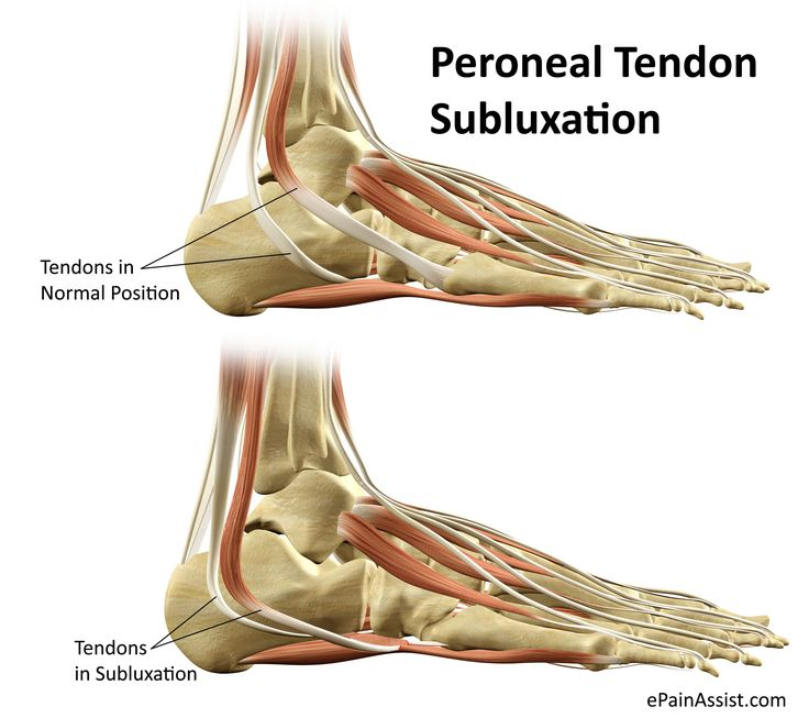 Peroneal Tendon Subluxation or Dislocation Read: http://www.epainassist.com/sports-injuries/ankle-injuries/peroneal-tendon-subluxation-or-dislocation-causes-symptoms-treatment