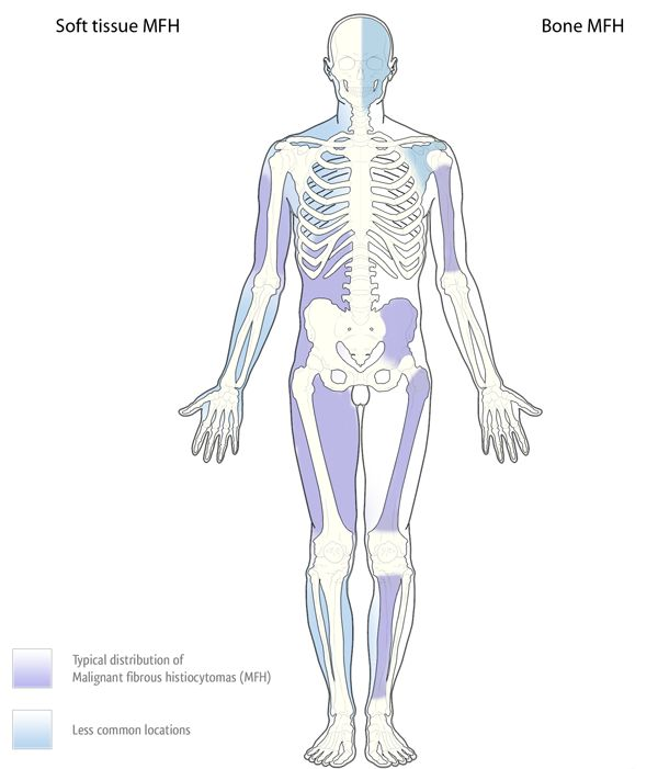 malignant-fibrous-histiocytoma
