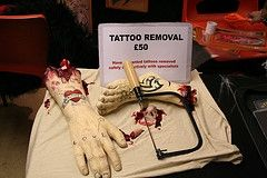 tattoo removal haha!