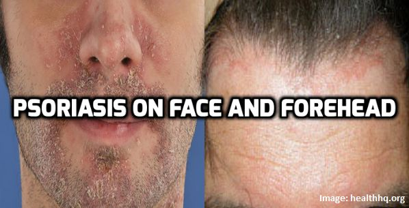 Natural Remedies For Facial Psoriasis