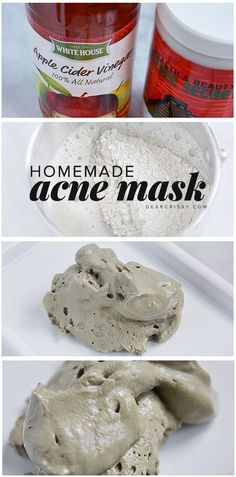 Homemade Acne Mask - This DIY acne mask recipe has just two ingredients and will detoxify your skin while unclogging and shrinking pores. AMAZING homemade beauty solution.