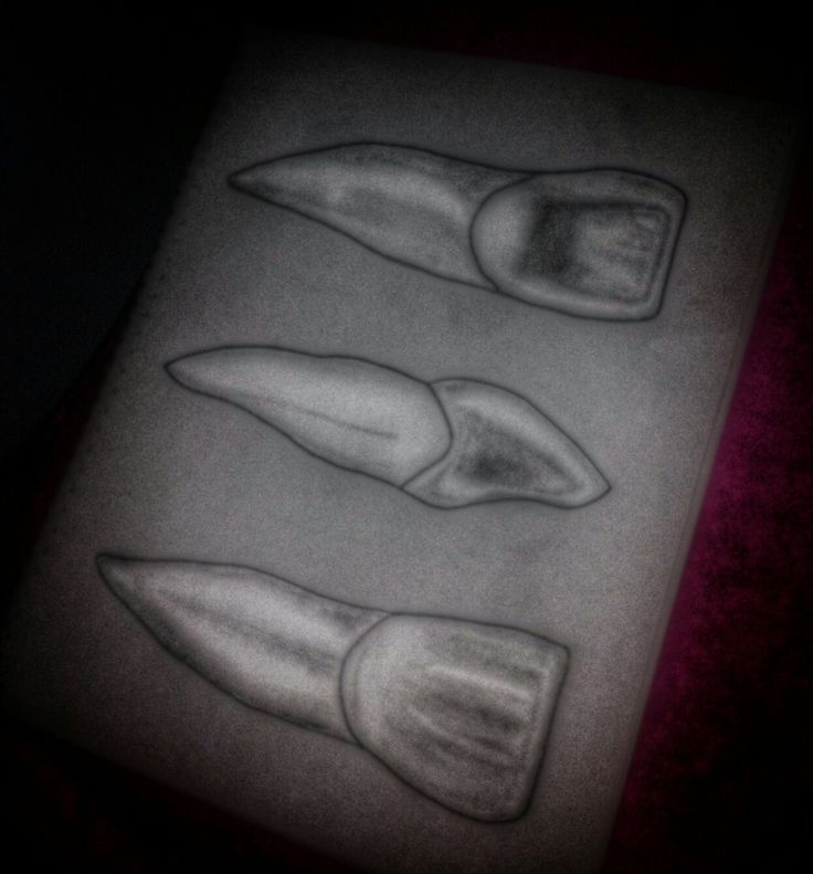 8 best Anatomia dental images on Pinterest | Anatomía dental ...
