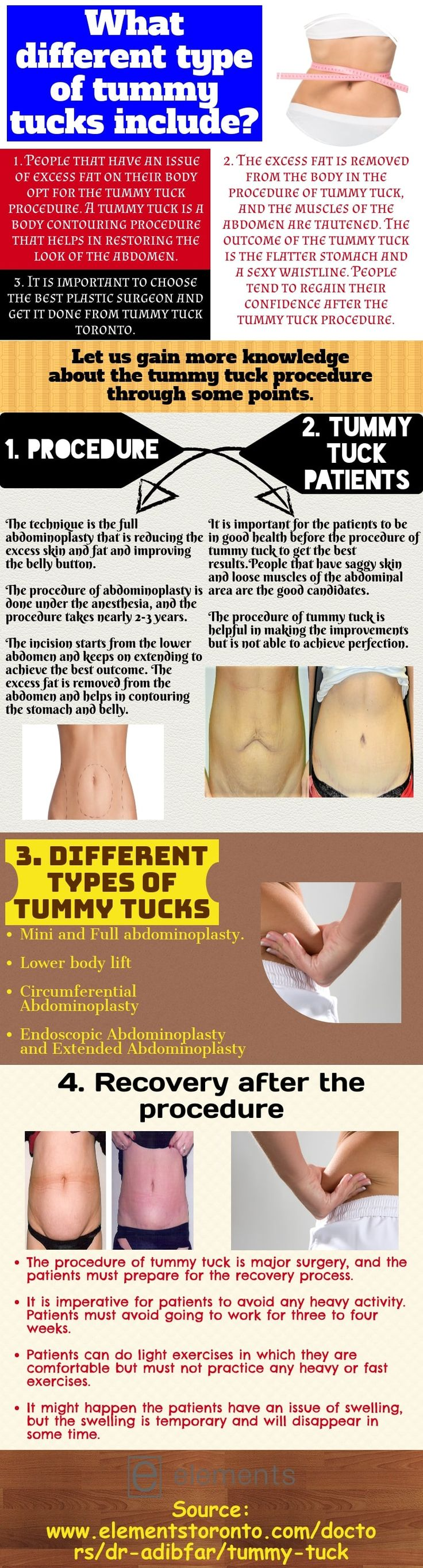 Procedure of tummy tuck to get the best results Tummy
