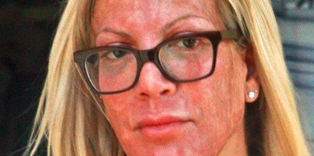 Vuelve a ser noticia. La popular actriz de Hollywood, Tori Spelling, famosa por su papel en la serie Beverly Hills 90210, ha terminado con el rostro desfigurado tras someterse a diversos tratamientos para la piel, como una dermoabrasión, una exfoliación química y depilación de cejas.