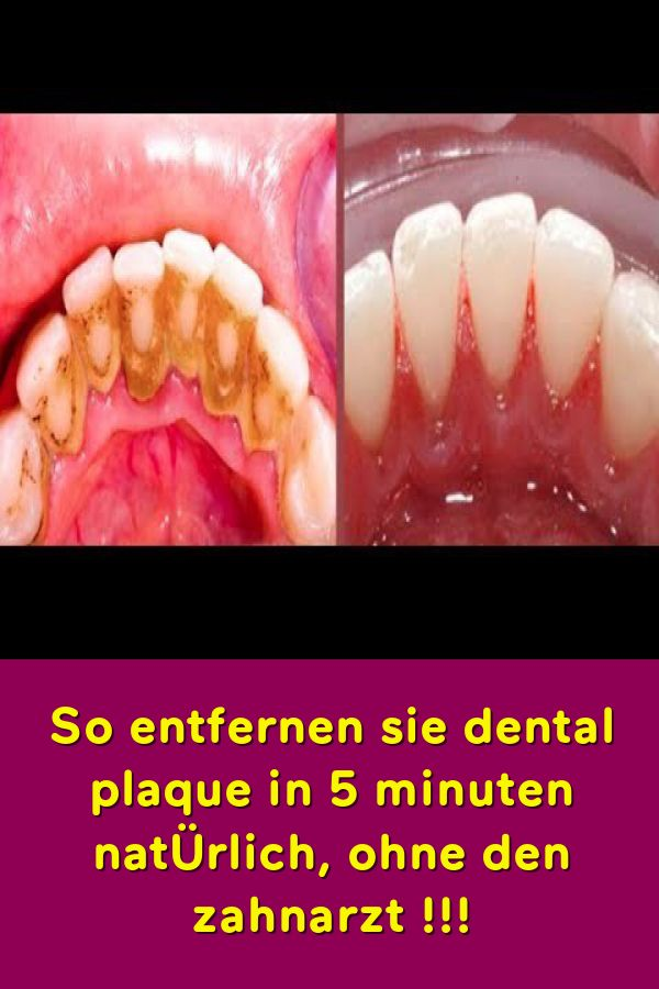 So entfernen sie dental plaque in 5 minuten natÜrlich ohne den zahnarzt !!!
