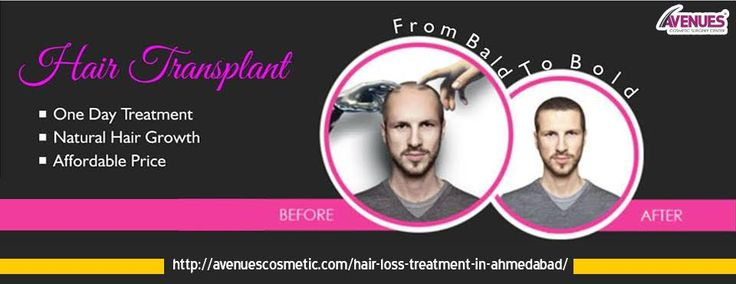 After you have undergone hair loss treatment in Ahmedabad you can style your hairs in any way you wish. Best hair loss treatment is hair transplant. Hair transplant is a kind of surgery that moves hair you already have in order to fill the area with thin or no hair.