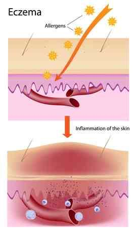 ECZEMA IN DEPTH #Eczema #Therapy. This is an explanation as to what exactly is going on in your skin.