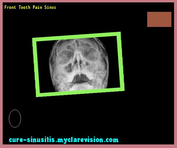 Front Tooth Pain Sinus 174911 - Cure Sinusitis