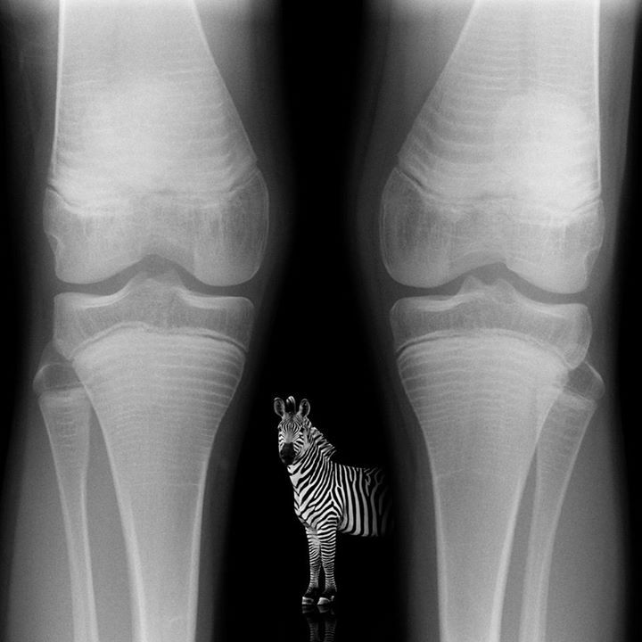 The zebra stripe sign occurs where children with osteogenesis imperfecta have been treated with cyclical bisphosphonate therapy, e.g. pamidronate. When the drug is delivered in cycles, dense bone is formed while treatment is being given. This results in dense stripes across the metaphyses of bones which can be visualized radiographically.