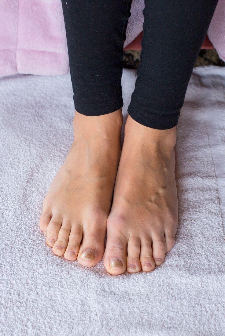emjoi micro pedi review home pedi diy pedicure nail care callus removal
