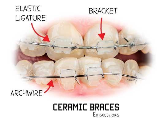 ceramic braces parts