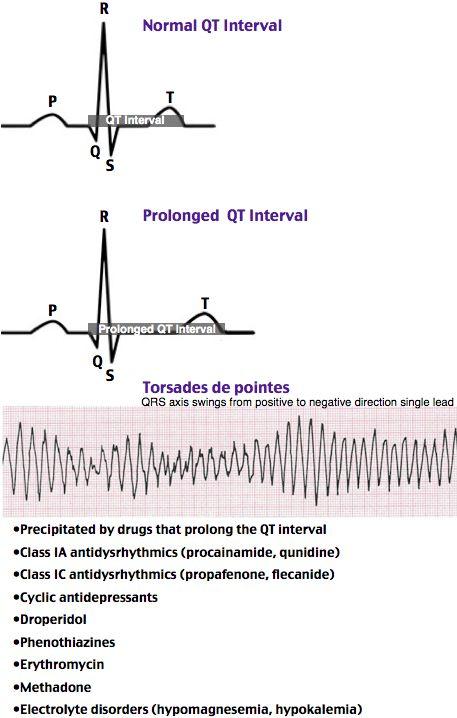 Ventricular Tachycardia Natural Remedies