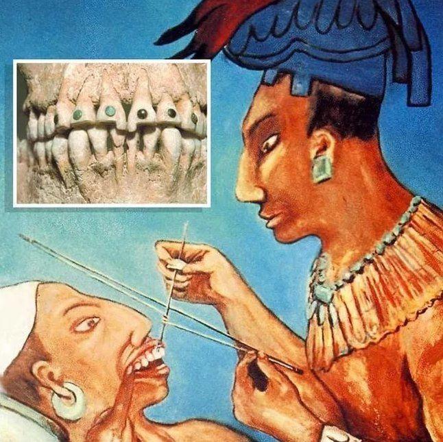 В древности #врачи считали, что #зубы сами по себе не разрушаются, а каждому зубу и участку слизистой оболочки на деснах соответствует определенный орган.  ✅ Если болят первые два зуба на любой из челюстей, то, скорее всего, вместе с ними страдают #почки и мочевой пузырь. ✅Болезненный третий зуб сигнализирует о состоянии печени и желчного пузыря. ✅Проблемы с четвертым и пятым зубами нижней челюсти или шестым и седьмым верхней свидетельствуют о неполадках в желудке, поджелудочной железе и…