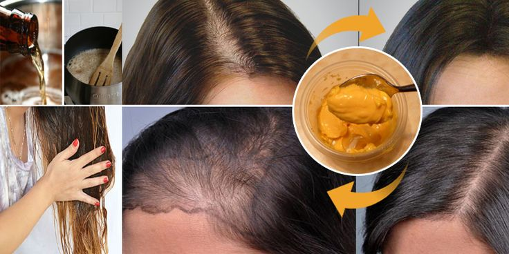 Hair loss is a distressing condition that is associated with a multitude of natural, medical, or nutritional conditions. For example, androgenetic alopecia in men, or male pattern baldness, is increasingly recognized as a physically and psychologically serious medical condition that often requires a professional care by generalist clinicians.