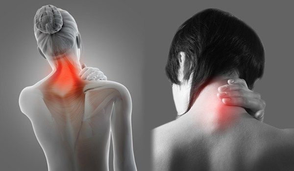 10 Useful Ways to Get Rid of Cervical Pain