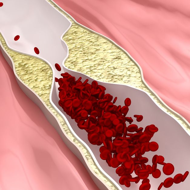 How To Clean Clogged Arteries