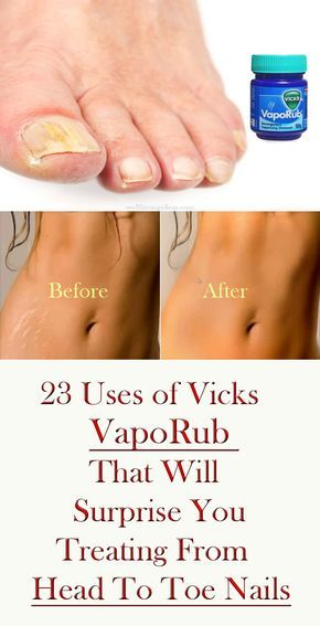 23 Surprising Uses of Vicks VapoRub That Will Surprise You – Treating From Head To Toe Nails