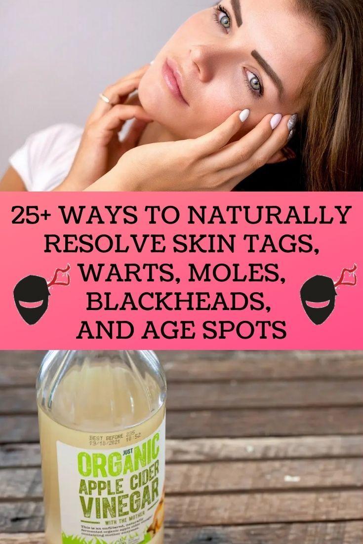 25 Ways To Naturally Resolve Skin Tags Warts Moles Blackheads And Age Spots In 2020 Diy Life Hacks Body Hacks Life Hacks Home