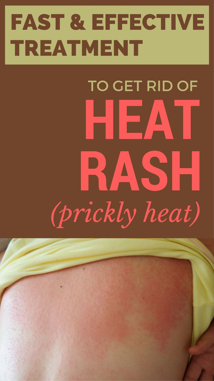 Fast and effective treatment to get rid of heat rash (prickly heat).