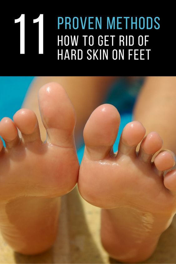 Knowing how to get rid of hard skin on feet is one thing, but doing it correctly to make sure that the problem does not continue to recur is something else. This is something that a number of people will suffer from at some point in their life, but the good news is that it is actually easy to not only treat, but stay on top of the problem.