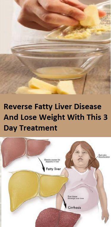 Himalaya Liver Care Weight Loss
