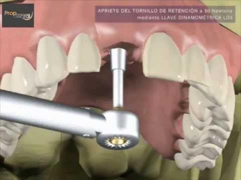¿Como se hace la prótesis sobre implantes dentales? - YouTube